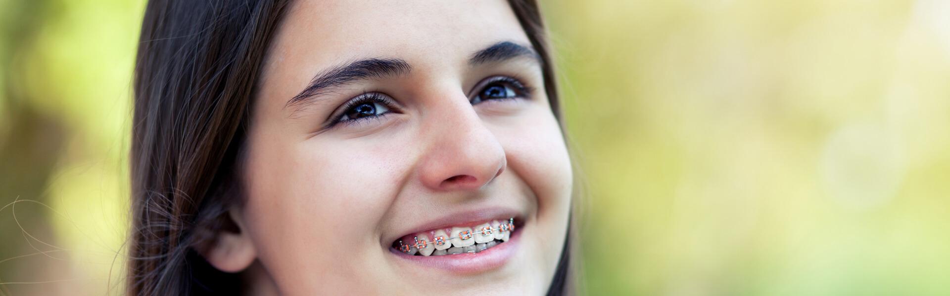 fixed-braces